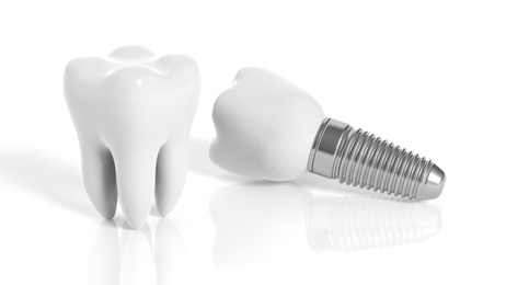 Tooth and dental implant